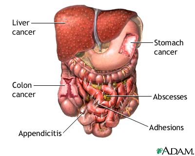 Abdominal exploration - series | Health Encyclopedia ...