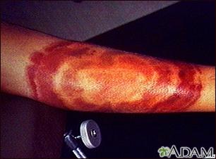 Lyme disease, erythema migrans