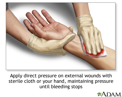 Stopping bleeding with direct pressure
