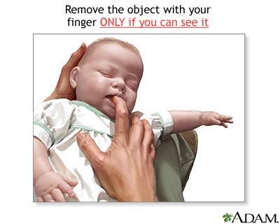 Heimlich maneuver on infant
