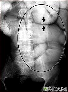Ileus - X-ray of bowel distension