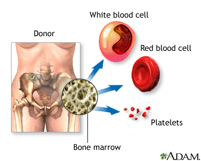 Bone-marrow transplant - series | Health Encyclopedia ...