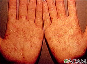 Syphilis, secondary on the palms