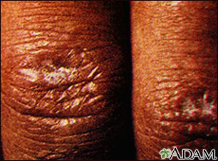Dermatomyositis, Gottron papule