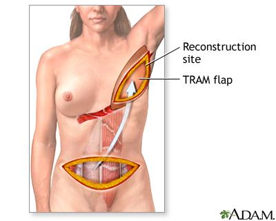 Procedure, part 1