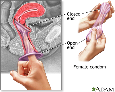 The female condom