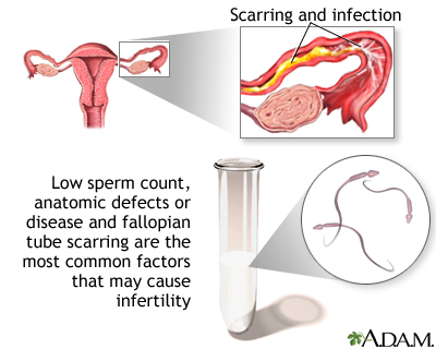 Primary infertility