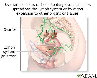 Ovarian cancer dangers