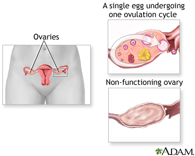 Ovarian hypofunction