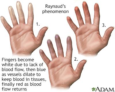 Raynaud's phenomenon