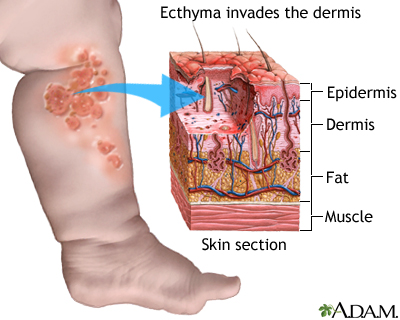 Ecthyma