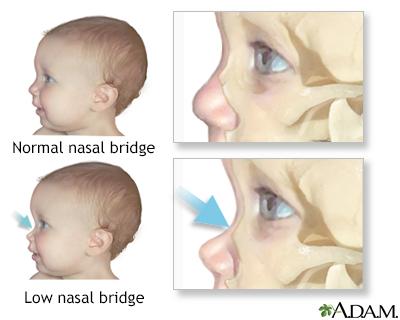 Low nasal bridge