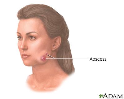 Actinomycosis (lumpy jaw)