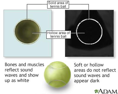 Ultrasound comparison
