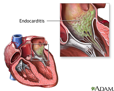 Culture-negative endocarditis