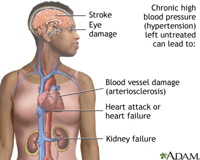 Untreated hypertension