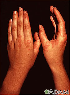 Erythema multiforme, circular lesions - hands