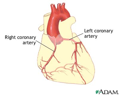 Coronary Artery Balloon Angioplasty Series Health Encyclopedia