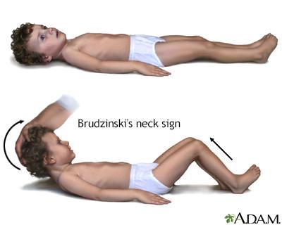 Brudzinski's sign of meningitis