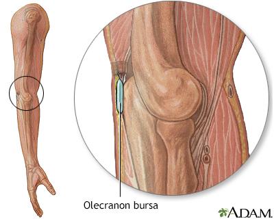 Bursa of the elbow