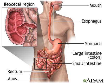 Crohn disease - affected areas