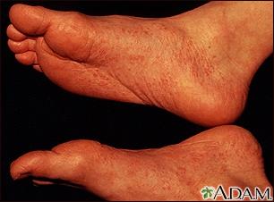 Reactive arthritis - view of the feet