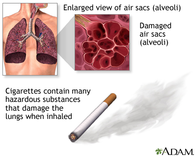 conclusion on respiratory A healthy respiratory system is designed to protect the lungs from occasional inhalation of smoke, dust and other harmful substances cigarette smoking not only damages its protective mechanism but continues to assault it with harmful material daily.