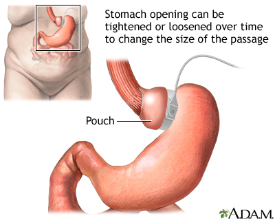 Adjustable gastric banding