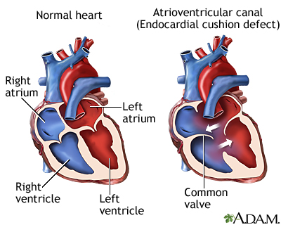 Atrioventricular canal (endocardial cushion defect)