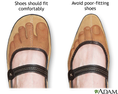 Proper fitting shoes