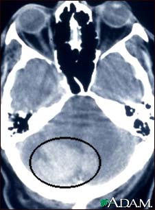 Intracerebellar hemorrhage - CT scan