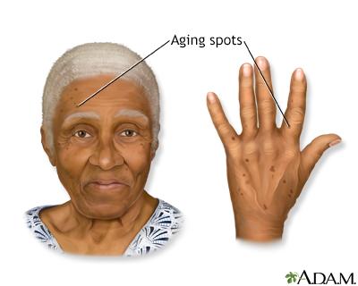 Aging spots