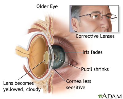 Aged eye anatomy