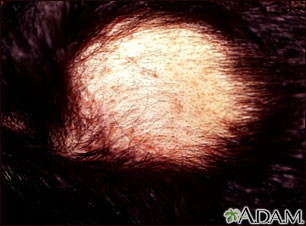 Alopecia areata with pustules
