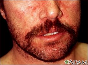 Dermatitis, seborrheic on the face