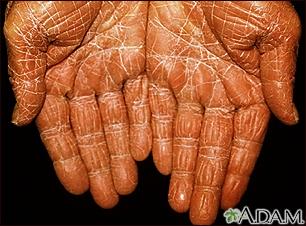 Pityriasis rubra pilaris on the palms