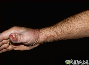 Sporotrichosis on the hand and arm