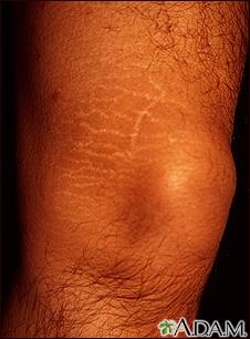Striae on the leg