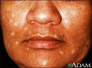 Vitiligo, drug induced