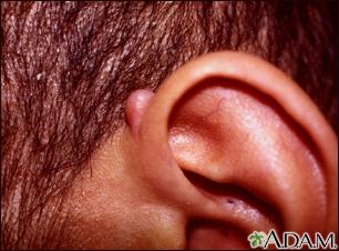 Keloid above the ear