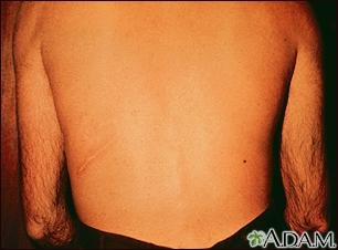 Strongyloidiasis, creeping eruption on the back