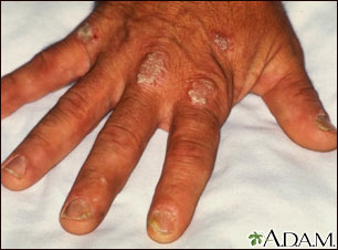 Psoriasis on the knuckles