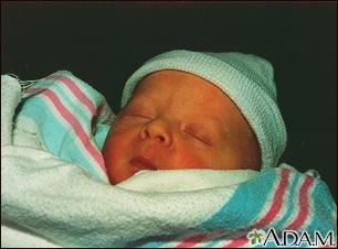 Jaundiced infant
