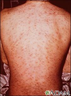 Drug rash on the back