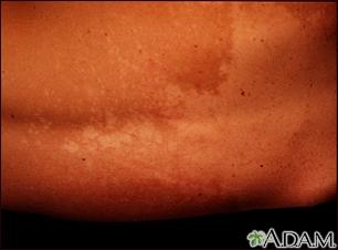 Tinea versicolor - back