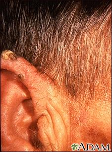 Actinic keratosis - ear