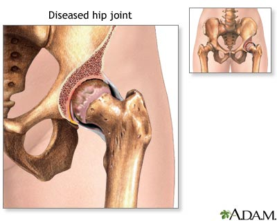 Diseased hip