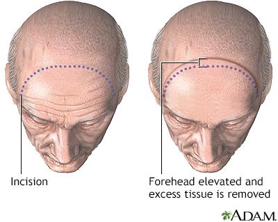 Forehead lift - Procedure