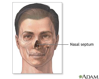 Normal anatomy