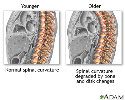 Changes in spine with age